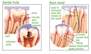 Diagram - Infected Tooth
