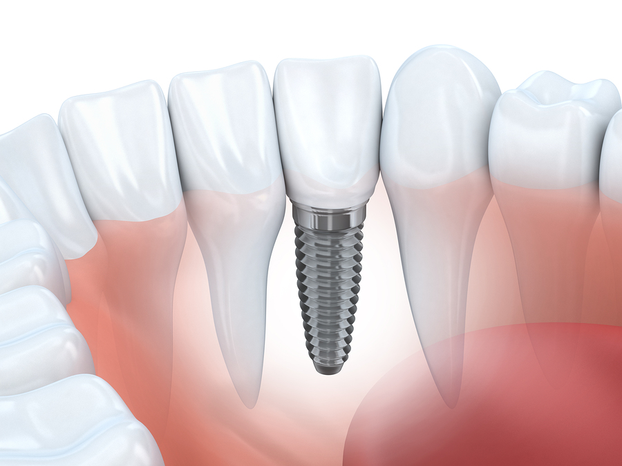 Dental Implant Phoenix
