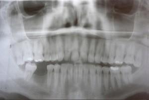 Phoenix Endodontist